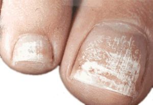How Contagious is Toenail Fungus? - Toe Fungus Journey
